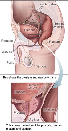 Prostasteel